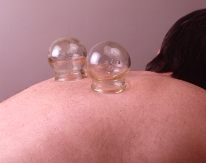 cupping_on_back_300ppi_A6[1]
